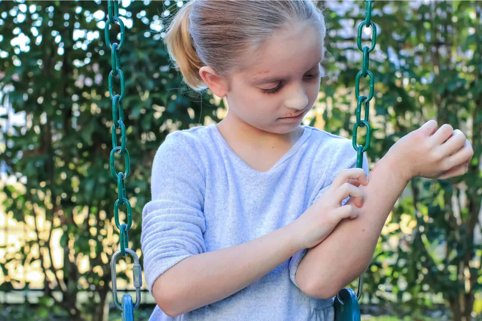 atopische Dermatitis an den Armen sichtbar